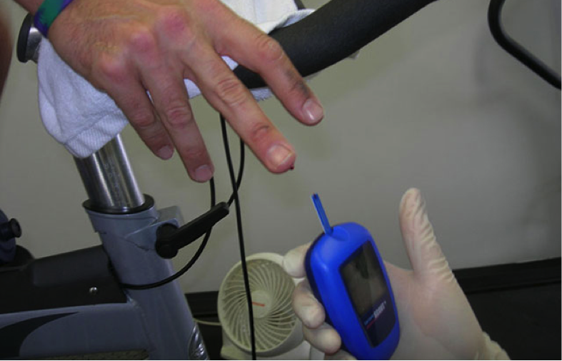 Analiza laktata u krvi laktat analizatorom